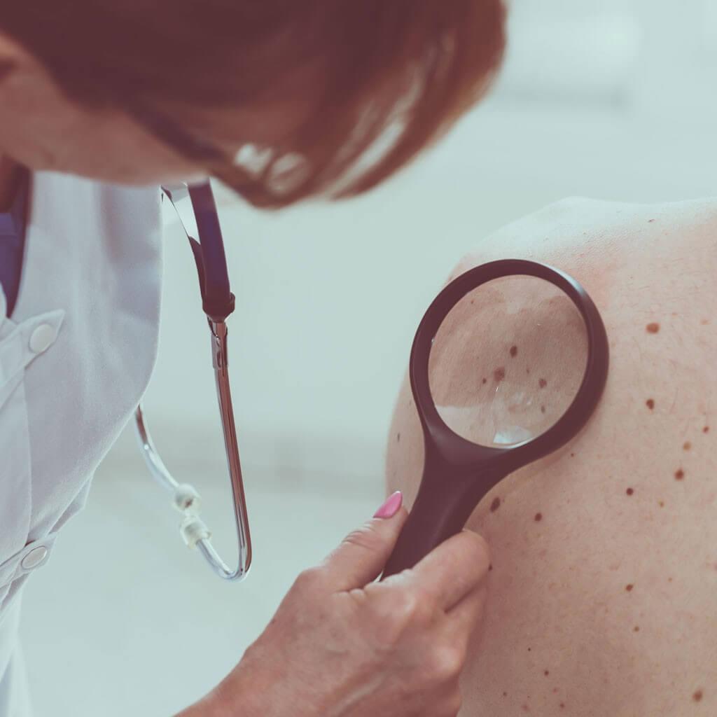 Dermatologia Hospital António Lopes